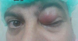 طاقم طبي فى م.العيون يستأصل ورم أعلى العين اليسرى لمريض اربعينى