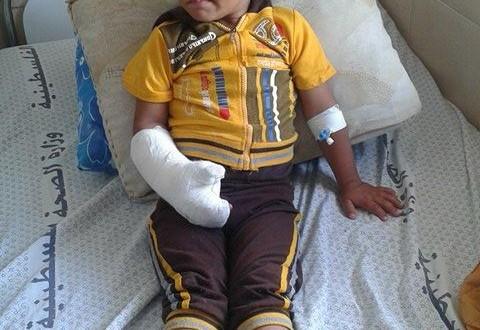 مستشفى الشهيد النجار ينقذ طفل من شلل في اليد