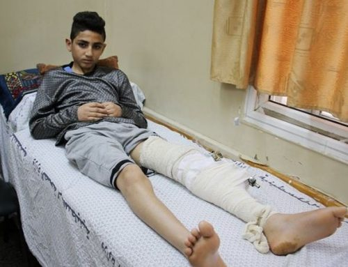 بعد اصابته برصاص متفجر…هل يتحقق حلم بشار في أن يصبح حارس مرمى عالمي؟