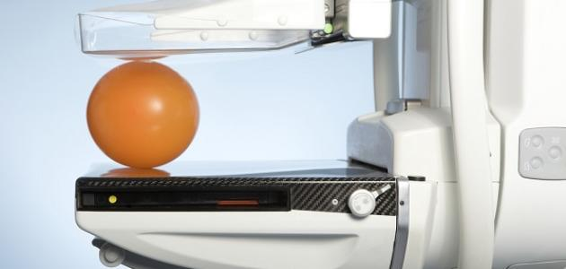 ما هي صورة الثدي بالأشعة (ماموجرام)؟