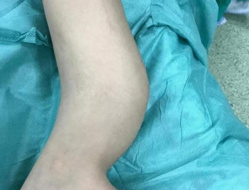 """طاقم طبي مجمع ناصر يجري أول عملية جراحية بتقنية """"ماسكيليه"""" لطفل"""