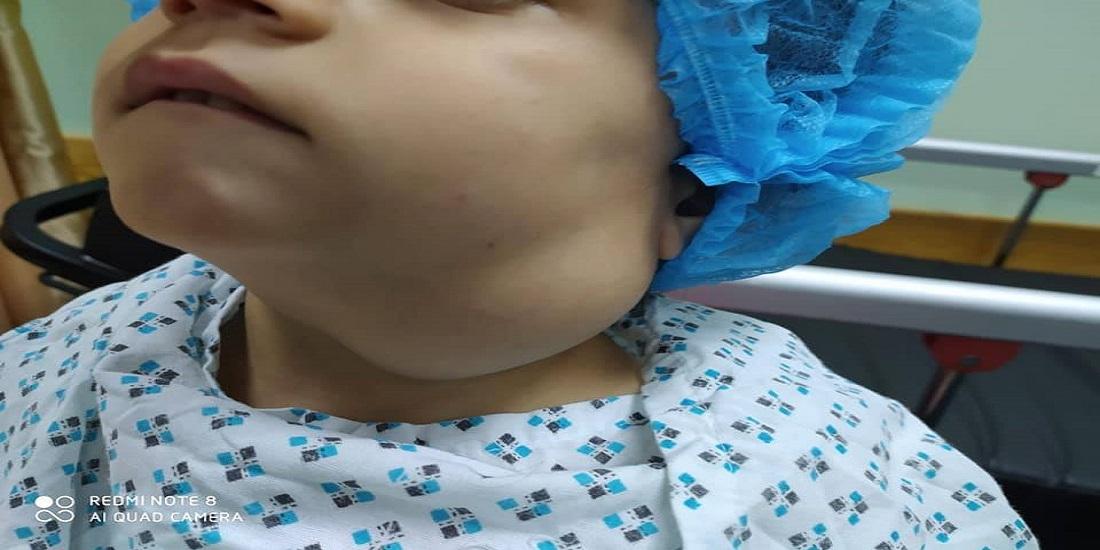 طاقم طبي مجمع ناصر يجري عملية سحب كيس مائي بطول 17 سم لطفلة كاد يفقدها حياتها